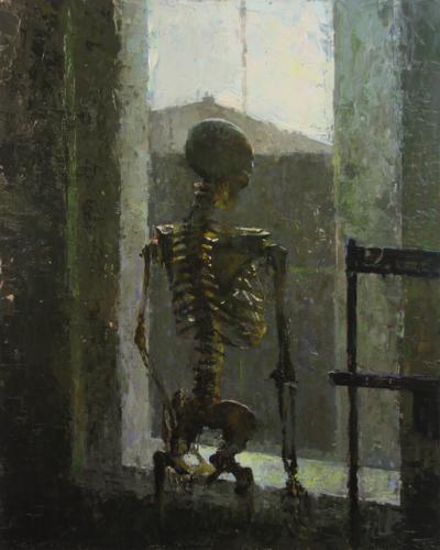 Patient Bones